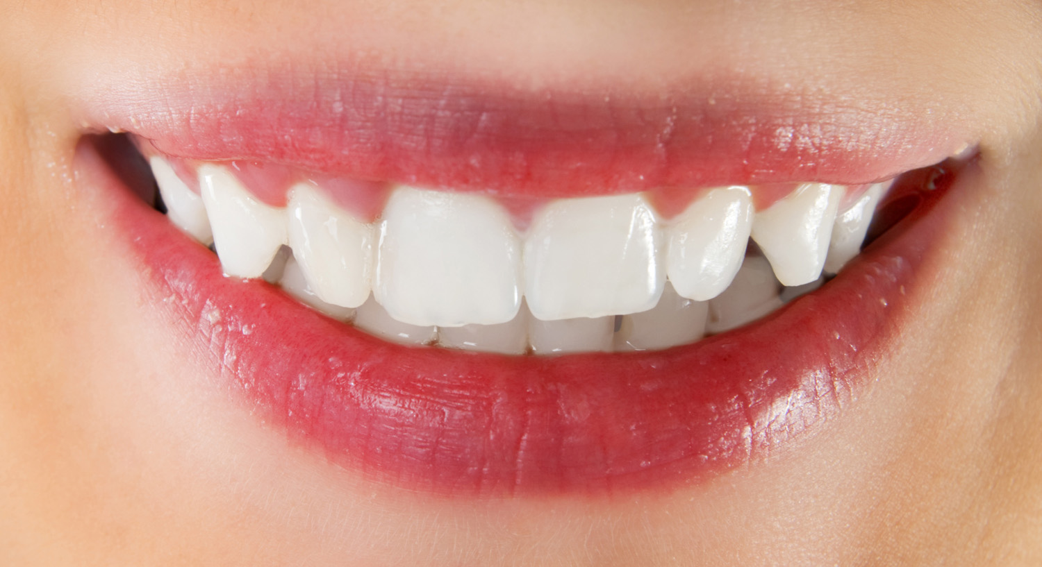White healthy teeth