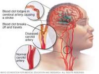 Resiko Penyakit Stroke